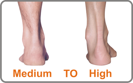 The Cavus Foot has a medium to high arch
