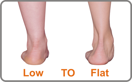 The Planus Foot has a low to flat arch