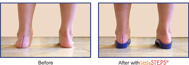 See the Difference littleSTEPS® foot orthotics make!