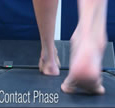 A Quad from The Quadrastep® System is for the Severe Pes Cavus foot - Contact Phase
