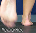 D Quad from The Quadrastep® System is for the Moderate Pes Planus foot - Midstance Phase