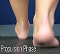 D Quad from The Quadrastep® System is for the Moderate Pes Planus foot- Propulsion Phase