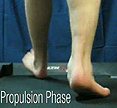 F Quad from The Quadrastep® System is for the Severe Pes Planovalgus foot- Propulsion Phase